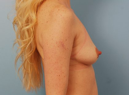 Breast Augmentation Before & After Patient #1636