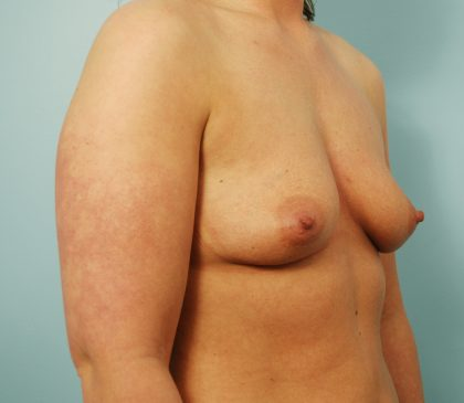 Breast Augmentation Before & After Patient #1520