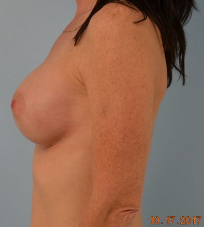 Breast Augmentation Before & After Patient #1498