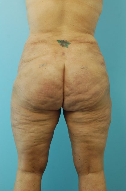 Liposuction Before & After Patient #1650