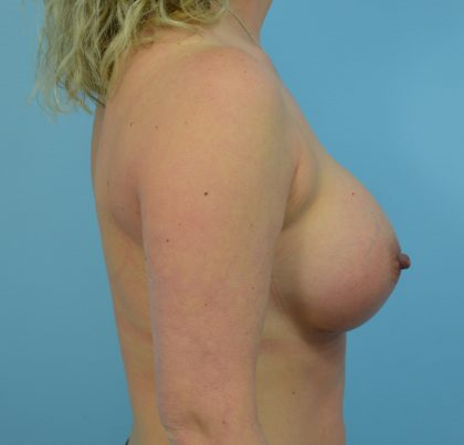 Breast Augmentation Before & After Patient #1501