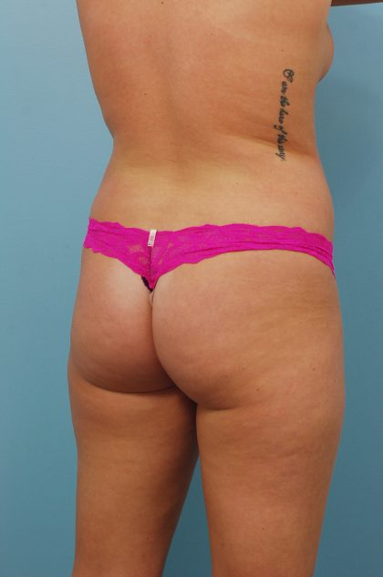 Brazilian Butt Lift Before & After Patient #1622