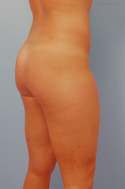 Brazilian Butt Lift Before & After Patient #1564