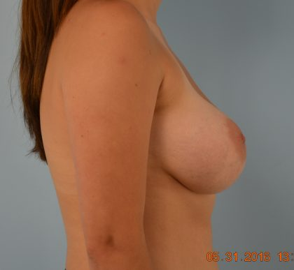 Breast Augmentation Before & After Patient #1508