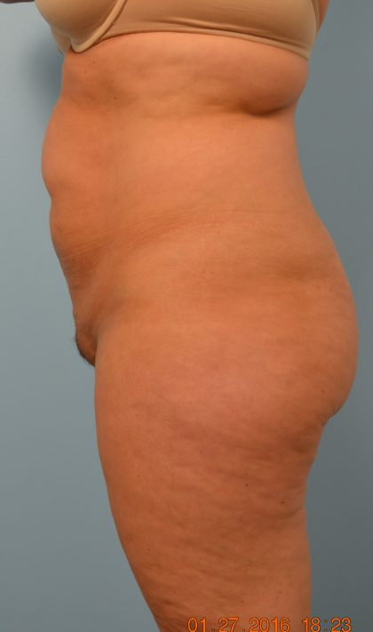 Liposuction Before & After Patient #1659
