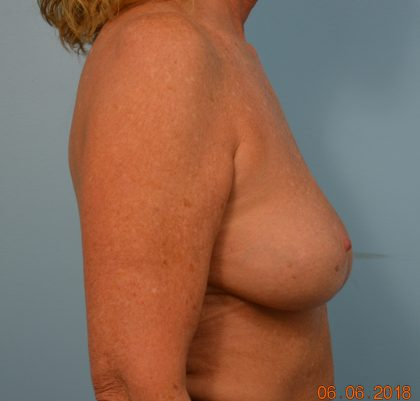 Breast Lift Before & After Patient #1629