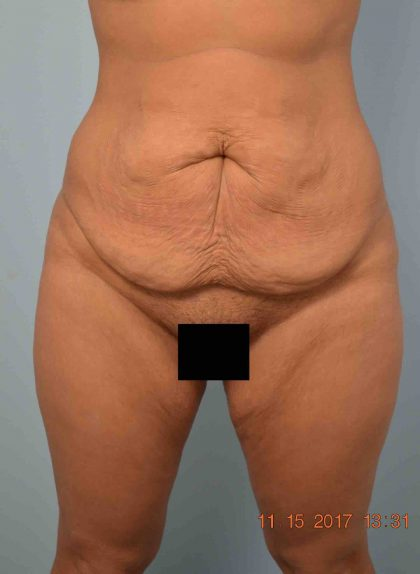 Tummy Tuck Before & After Patient #1588