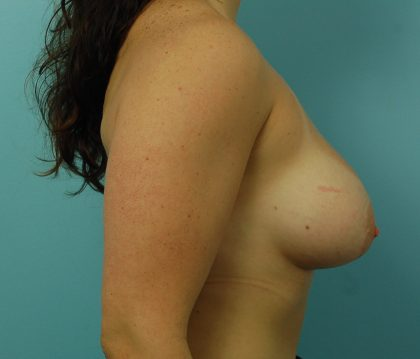 Breast Augmentation Before & After Patient #1499