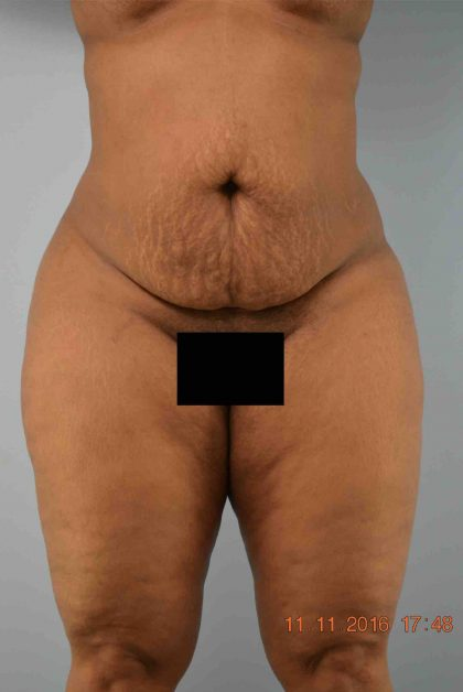 Tummy Tuck Before & After Patient #1551