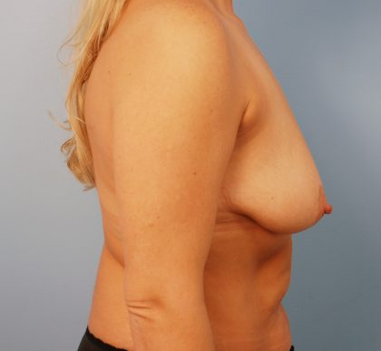 Breast Lift Before & After Patient #1535