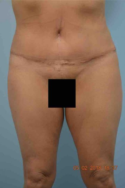 Tummy Tuck Before & After Patient #1583