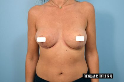 Breast Lift Before & After Patient #1819