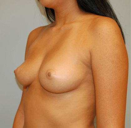 Breast Augmentation Before & After Patient #2255
