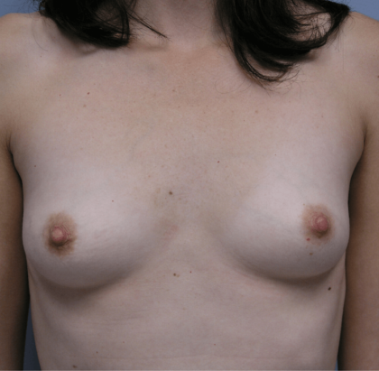 Breast Augmentation Before & After Patient #2279