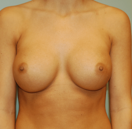 Breast Augmentation Before & After Patient #2258