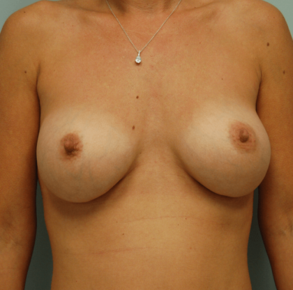 Breast Augmentation Before & After Patient #2261