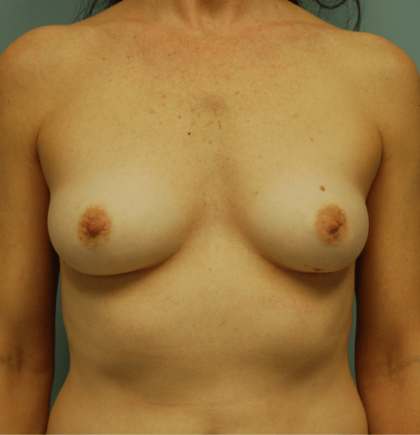Breast Augmentation Before & After Patient #2276