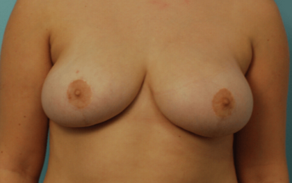 Breast Reduction Before & After Patient #2288