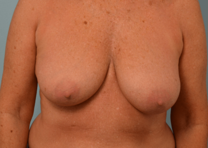 Breast Reduction Before & After Patient #2295
