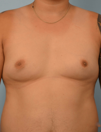 Gynecomastia Before & After Patient #2298
