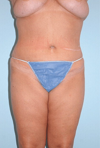 Tummy Tuck Before & After Patient #2301