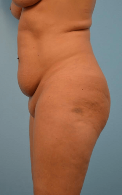 Tummy Tuck Before & After Patient #2306