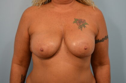Breast Implant Refresh and Removal Before & After Patient #2409