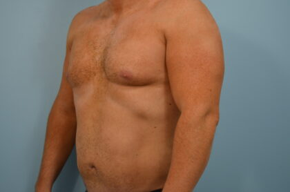 Liposuction Before & After Patient #2392