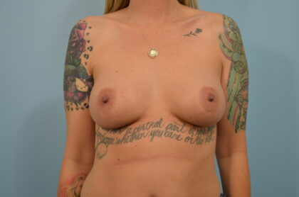 Breast Implant Refresh and Removal Before & After Patient #2416