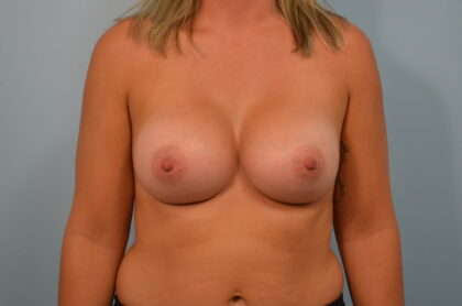 Breast Augmentation Before & After Patient #2423