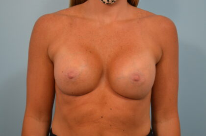 Breast Augmentation Before & After Patient #2438