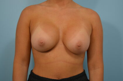 Breast Augmentation Before & After Patient #2455