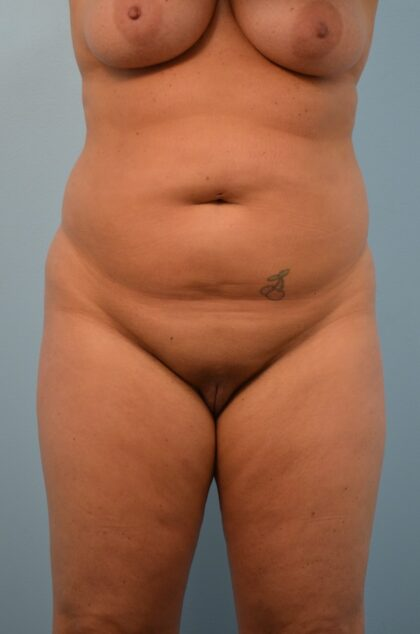 Liposuction Before & After Patient #2476